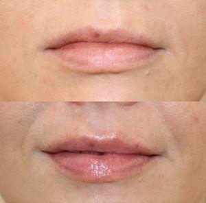 Lip Filler 1